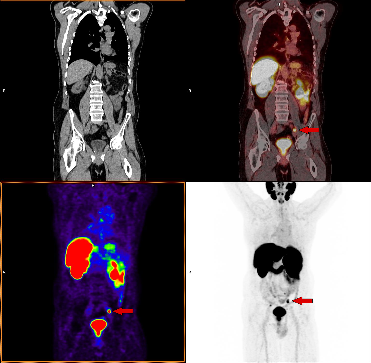 cáncer de próstata con escáner axumin